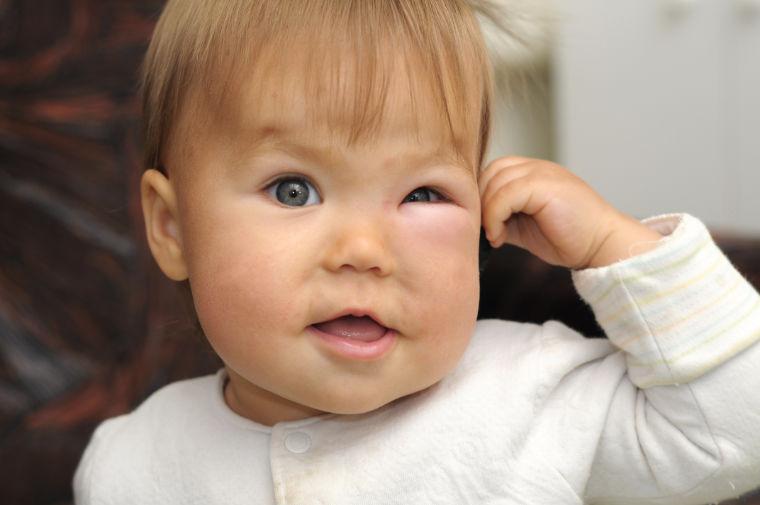 Mückenstich Schwellung Baby
